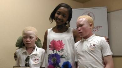 Killed for their 'lucky' body parts: the threat to people living with albinism and how Bible Society is helping